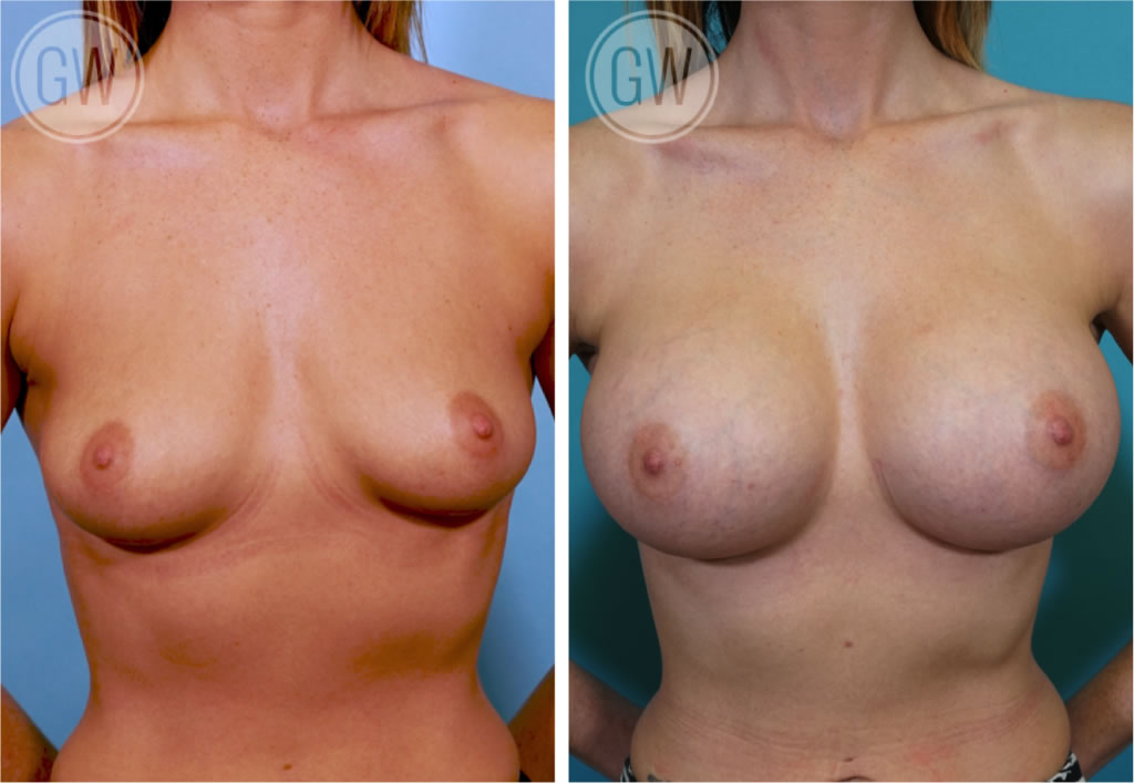 How much is boob implants — photo 7